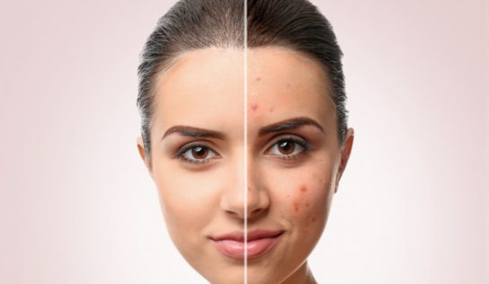 Rimedi naturali per eliminare i segni dell'acne