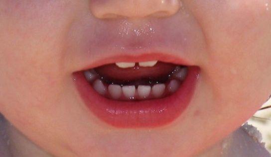 Come prevenire le infezioni nei bambini piccoli.
