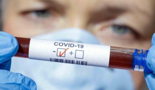 Diasorin test rapido per il Coronavirus.