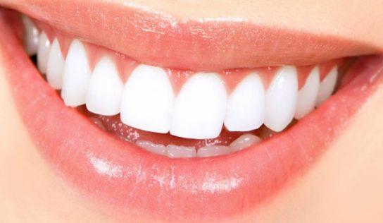 Rimedi naturali per sbiancare i denti.