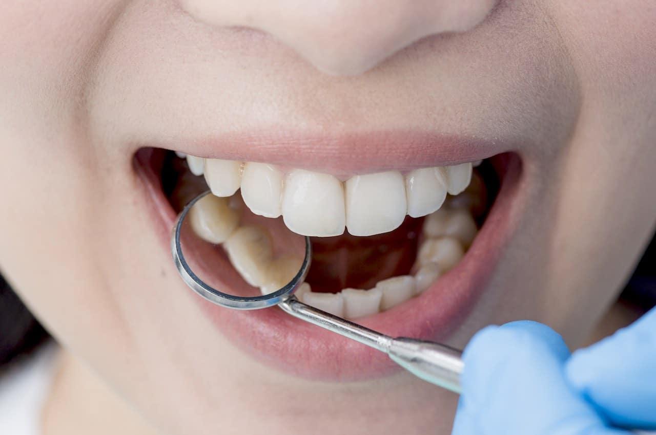 rimedi naturali tartaro denti