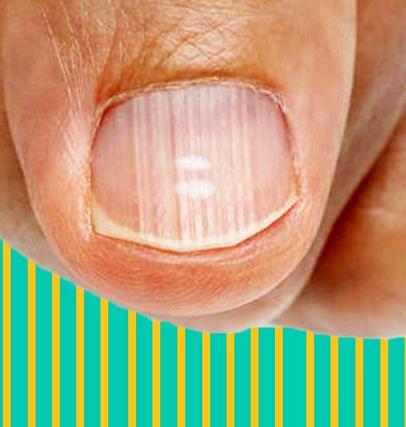 Righe verticali sulle unghie: le cause e la cura