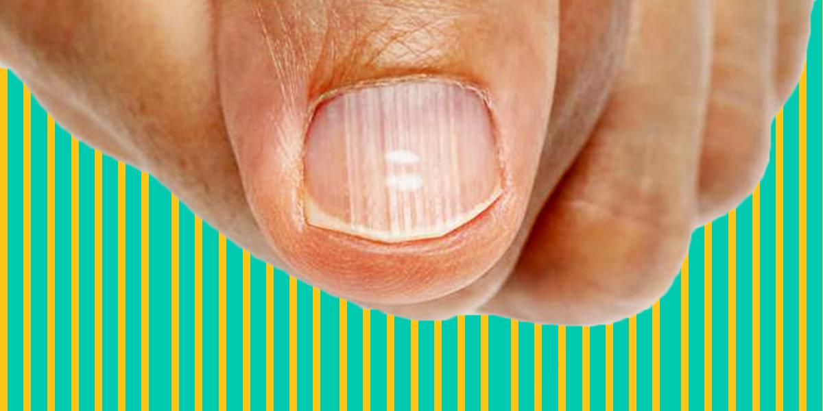 righe verticali unghie